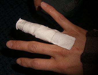 ニュージーランド旅行の海外旅行保険について説明します。怪我は無料!