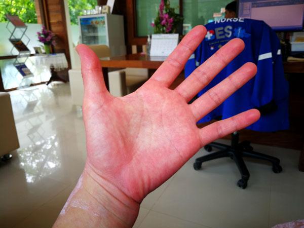 デング熱に感染!高熱が続き、関節痛、倦怠感で動けず、手足が超痒い!